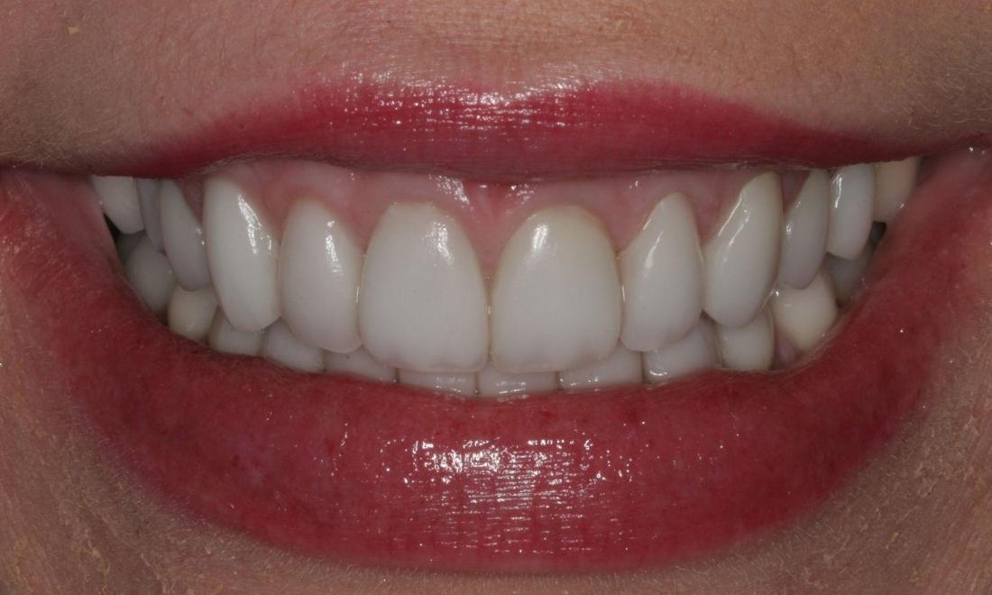 "Katie To, DDS's Smile Gallery | "" I have Tetracycline Stained Teeth"