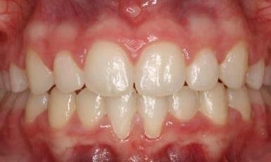 Smile Makeover - ORTHODONTICS