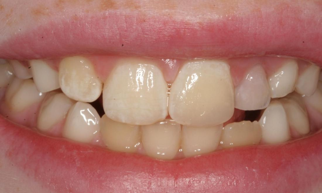 Tooth Color Resin Composite - EMERGENCY