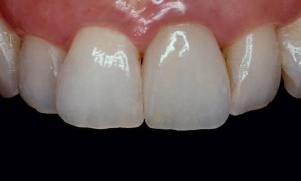 One-upper-front-tooth-looks-very-bad-ALL-CERAMIC-CROWN-After-Image