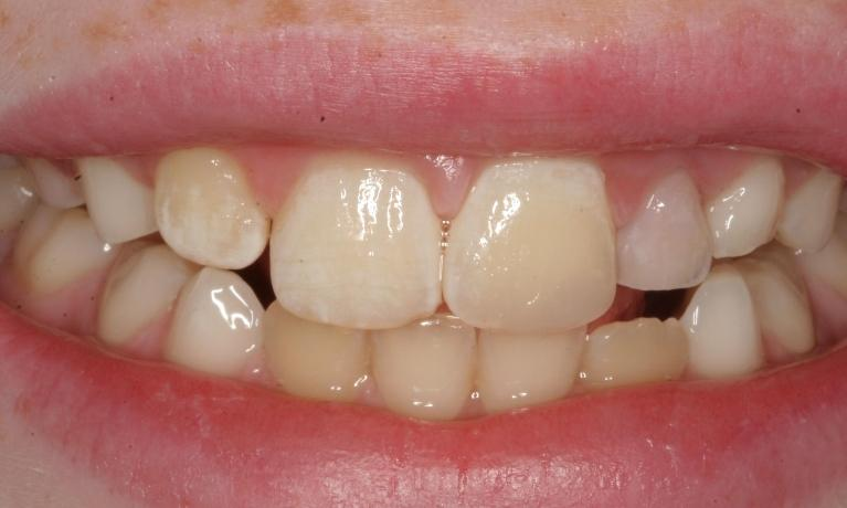 Tooth-Color-Resin-Composite-EMERGENCY-After-Image