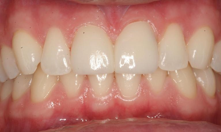 ZOOM-Teeth-Whitening-After-Image