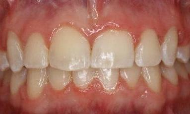 Katy, TX Dentist | Smile Gallery | Orthodontics 77494