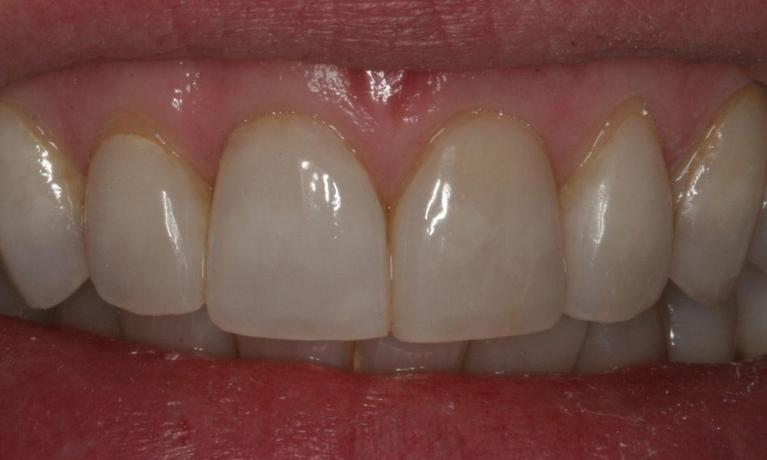 I-have-Tetracycline-Stained-Teeth-VENEERS-Before-Image
