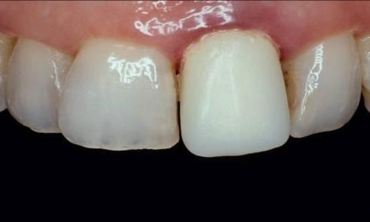 One-upper-front-tooth-looks-very-bad-ALL-CERAMIC-CROWN-Before-Image
