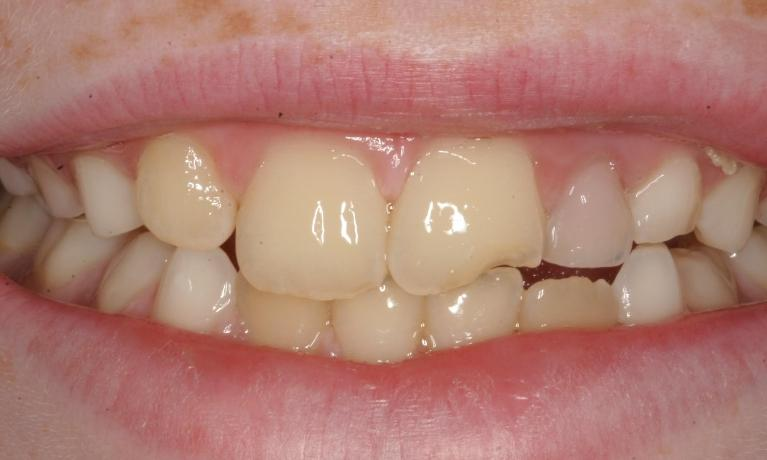 Tooth-Color-Resin-Composite-EMERGENCY-Before-Image