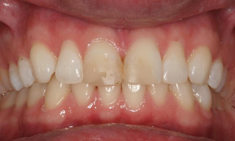 ZOOM-Teeth-Whitening-Before-Image